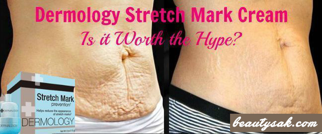 13 Best Stretch Mark Creams On The Market 2019 Updated