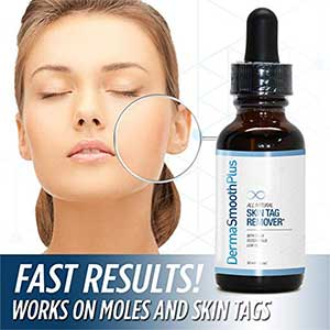 12 Best Mole Removal Creams To Get Rid Of Unwanted Moles
