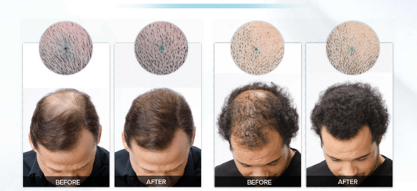 how hair juice accelarator works