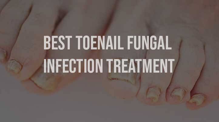 Best Toenail Fungal Infection Treatment - 2019 Updated
